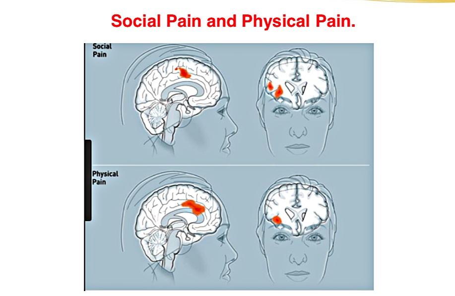 Social Pain